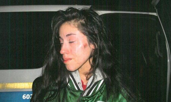 Mariah Valenzuela injuries 1